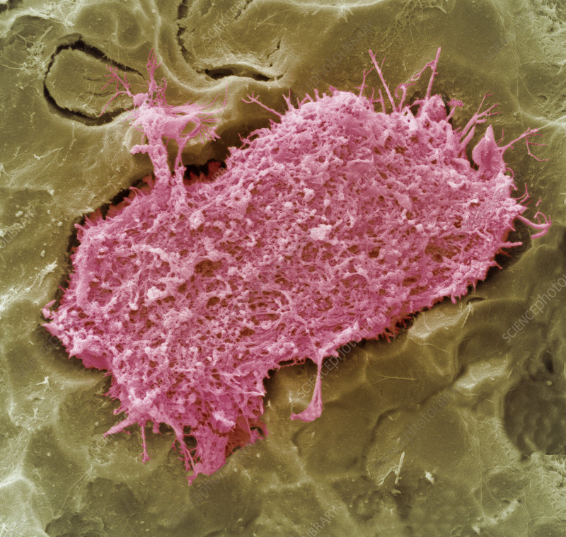 Tooth resorption cell, SEM