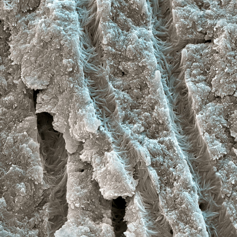Dentine tooth tissue, SEM