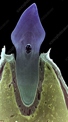 Incisor tooth, light micrograph