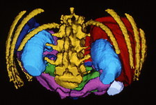 False-colour 3-D CT scan of digestive viscera