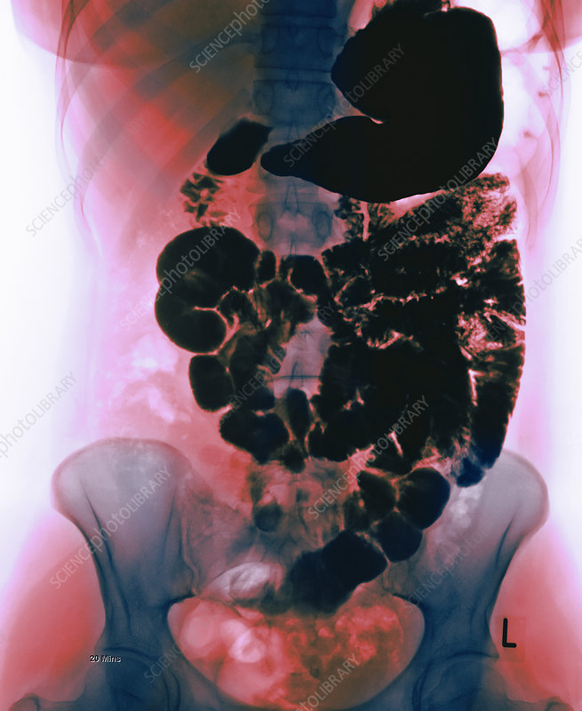 Normal digestive system, barium X-ray
