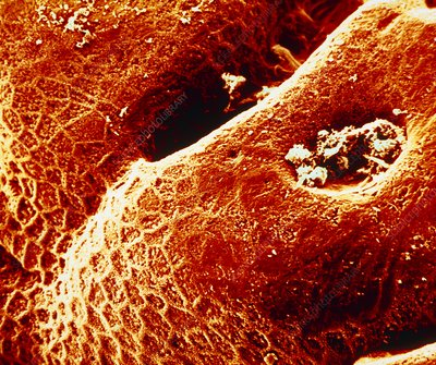 SEM of the human stomach mucosa