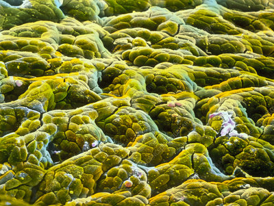 False-colour SEM of gastric glands of stomach