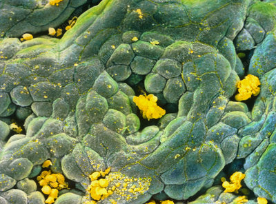 False-colour SEM of gastric gland in stomach
