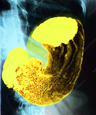 Coloured X-ray of a healthy human stomach