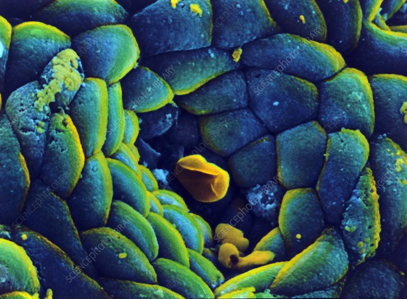 Coloured SEM of the stomach mucosa & gastric pit