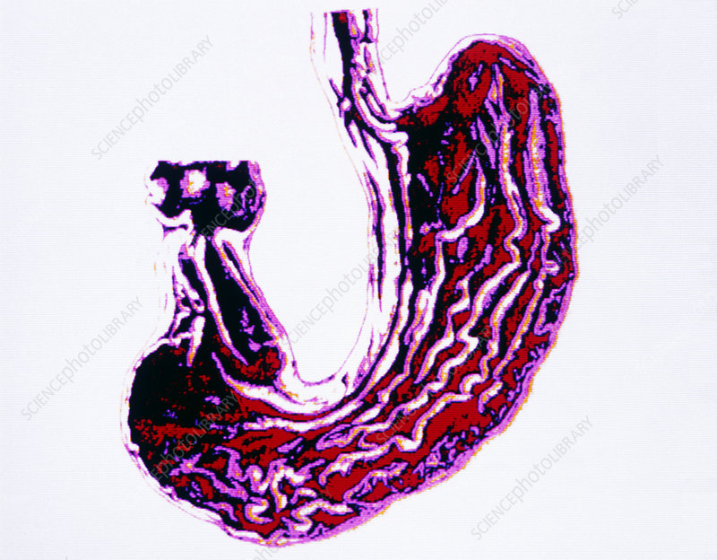 Computer artwork of stomach and lower oesophagus