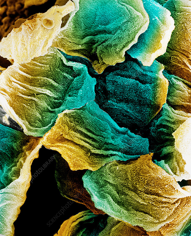 Coloured SEM of epithelial cells in the oesophagus