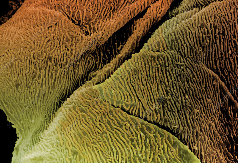 SEM of epithelial cells in the oesophagus