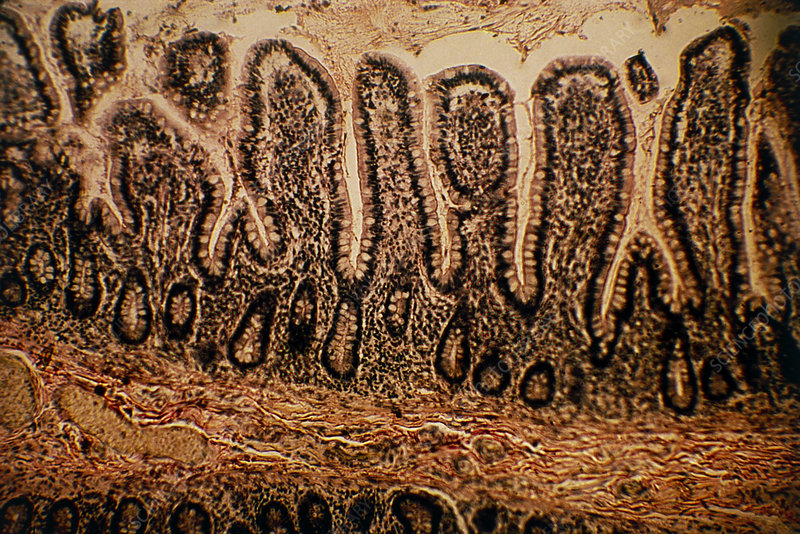 LM of a section through the human intestinal wall