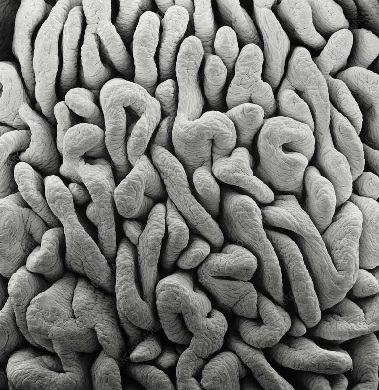 SEM of intestinal villi