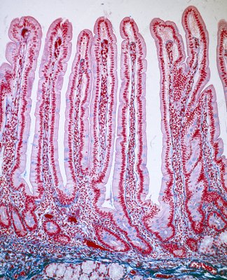 LM of villi in small intestine