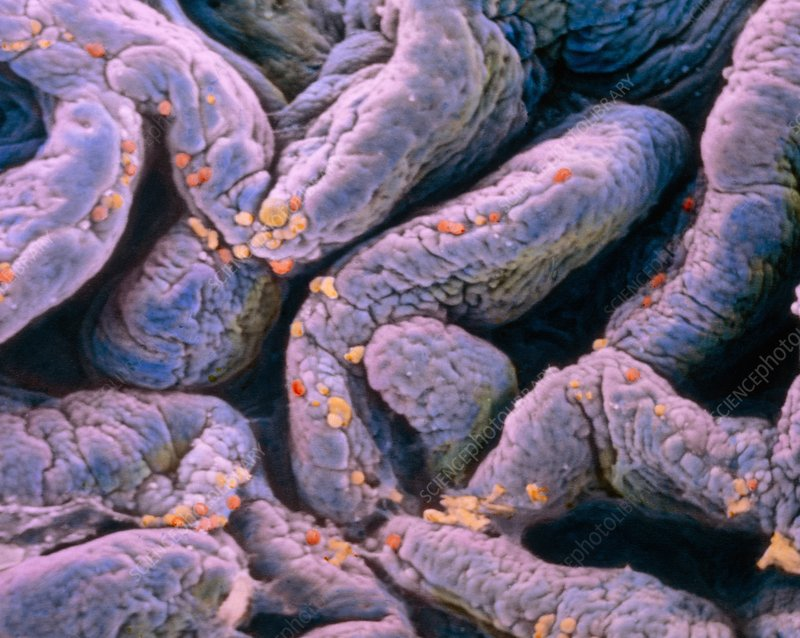 False-colour SEM of villi in the jejunum