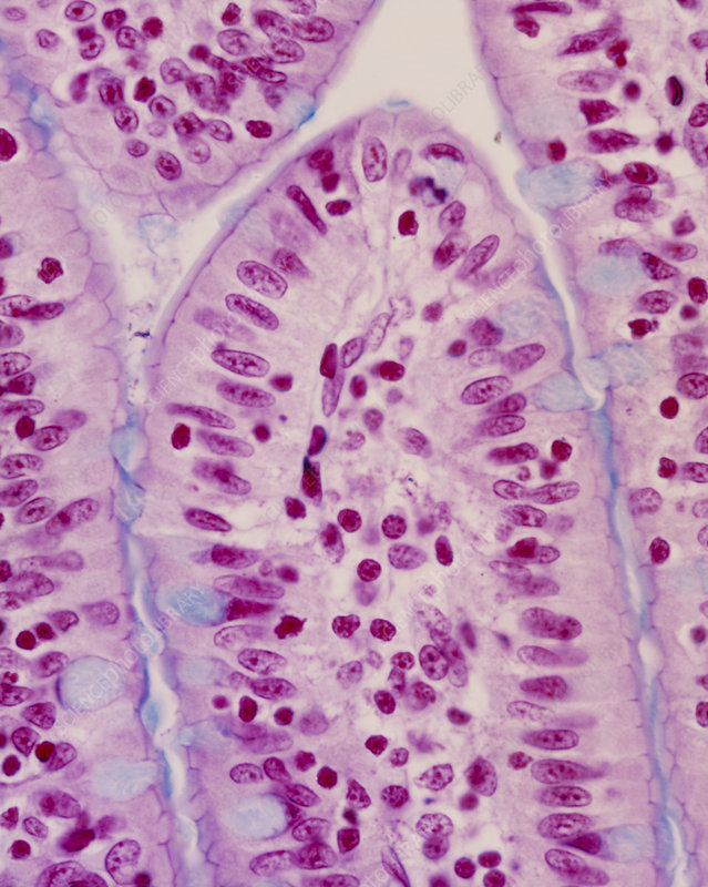 LM of a section through tip of intestinal villus