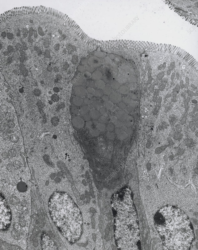 TEM of goblet and secretory cells in duodenum