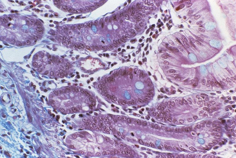 Small intestine mucosa