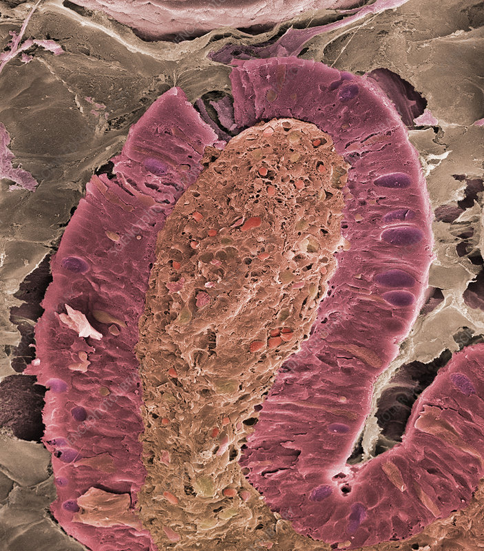 Small intestine villus, SEM