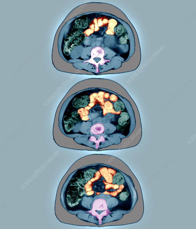 Intestines, CT scan