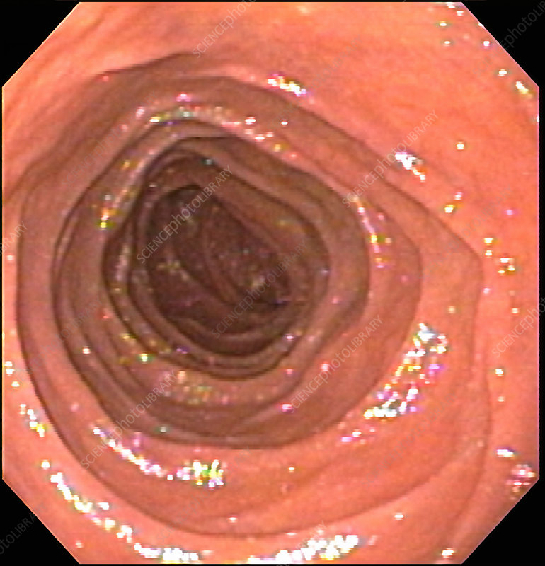Normal Duodenum