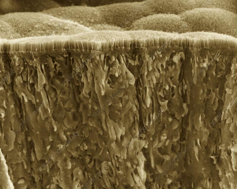 Small intestine microvilli, SEM