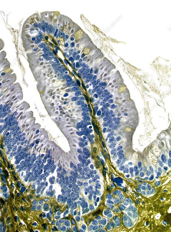 Intestinal villus, light micrograph