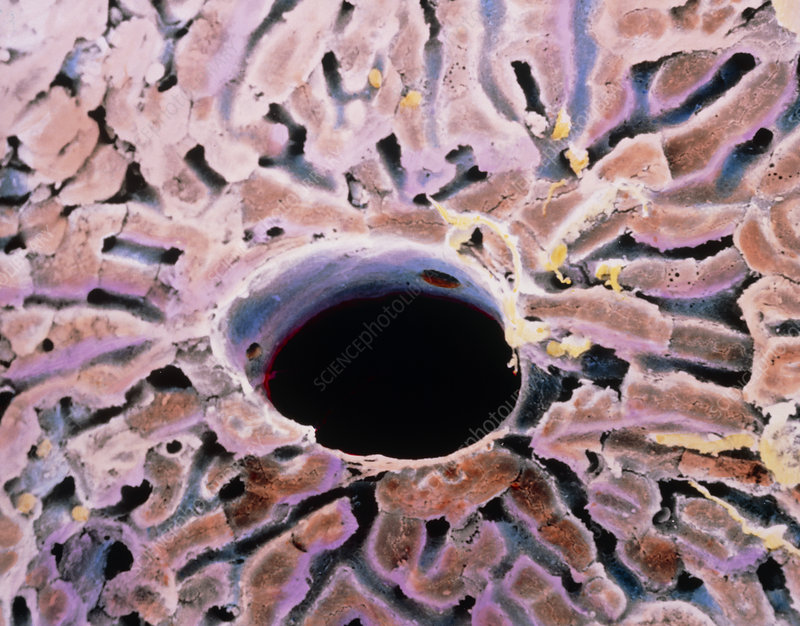False-colour SEM of a lobule of the liver