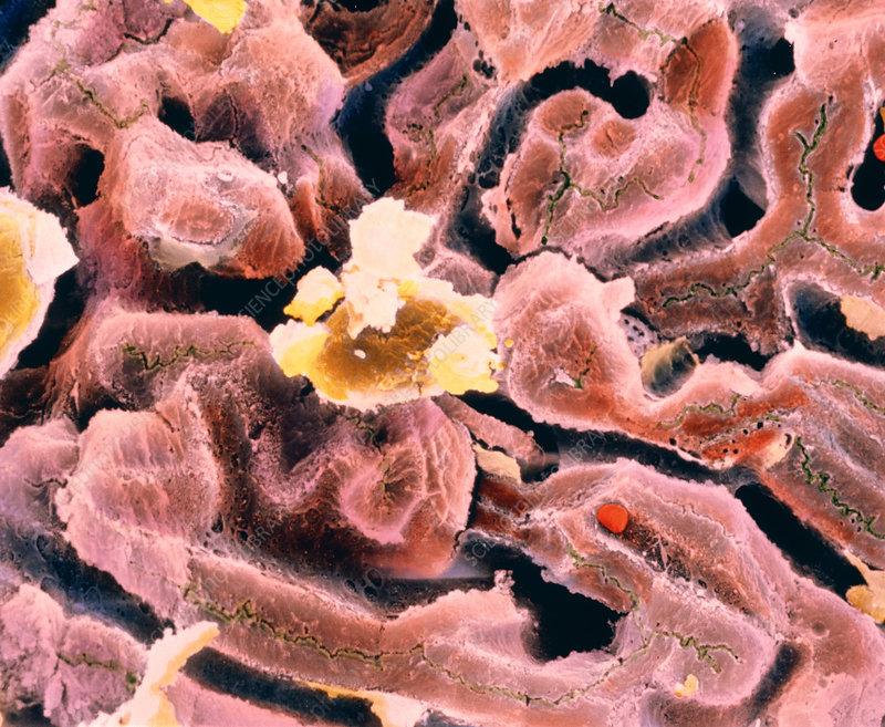 False-colour SEM of cell structure of liver lobule
