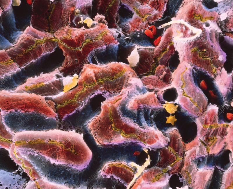 SEM of liver lobule