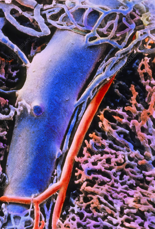 SEM of the liver vascular architecture