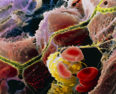 Coloured SEM of liver cells and bile canaliculi