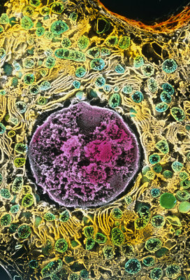 Coloured SEM of a liver cell (hepatocyte)