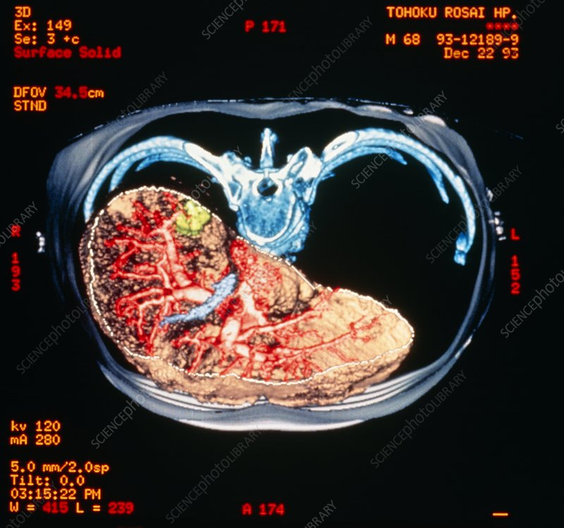 Coloured CT scan of human abdomen showing liver
