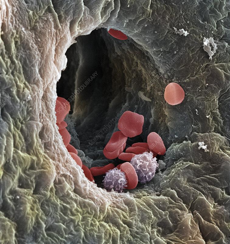 Liver capillary, SEM