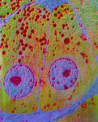 F/col TEM of acinar cells in exocrine pancreas