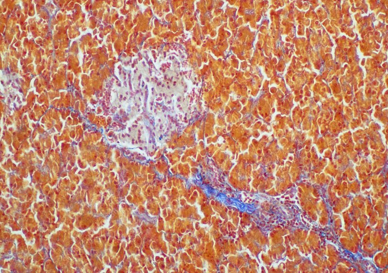 Light micrograph of a section of human pancreas