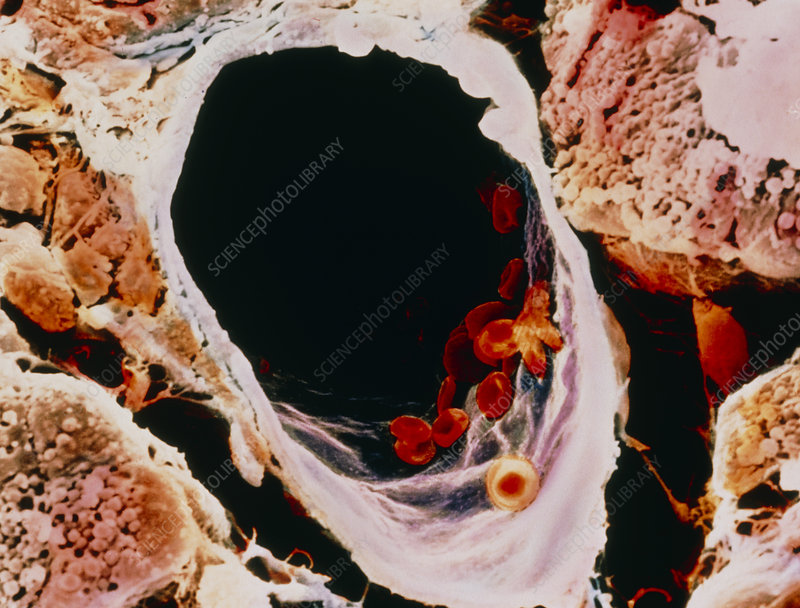 Coloured SEM a small vein in pancreatic tissue