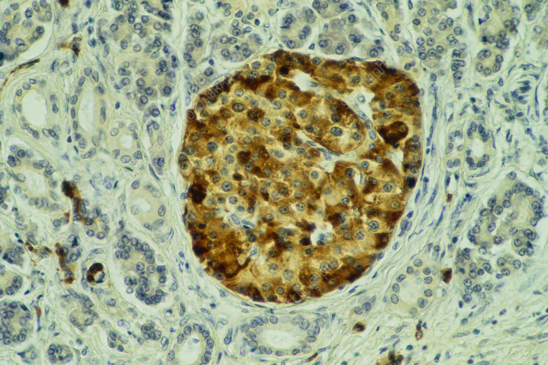 LM of islet of Langerhans in the pancreas
