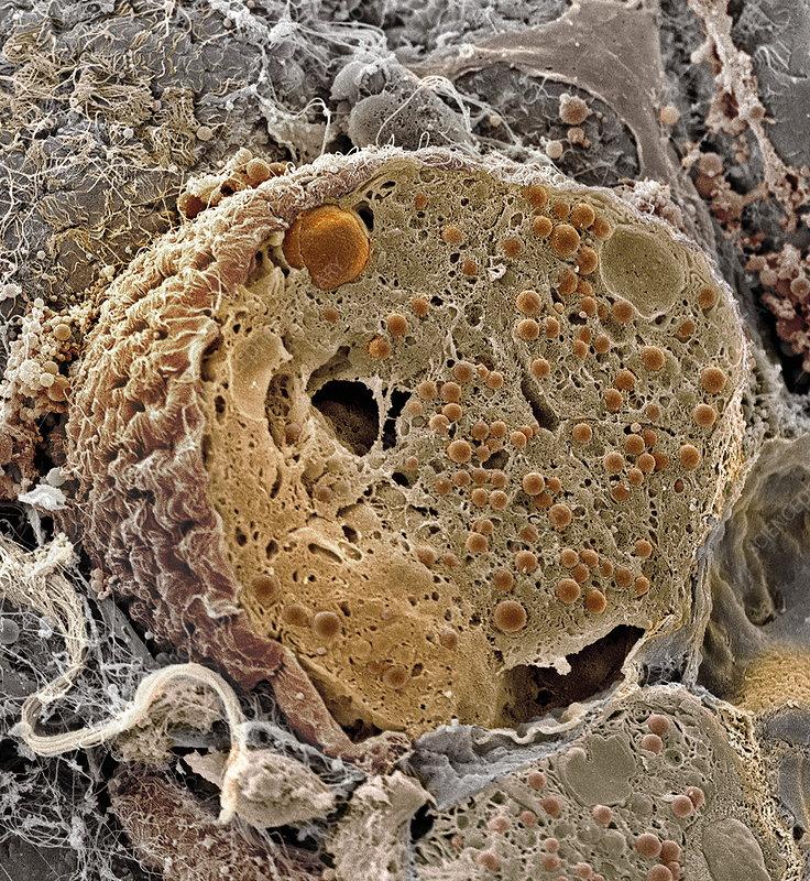 Pancreas cell, SEM