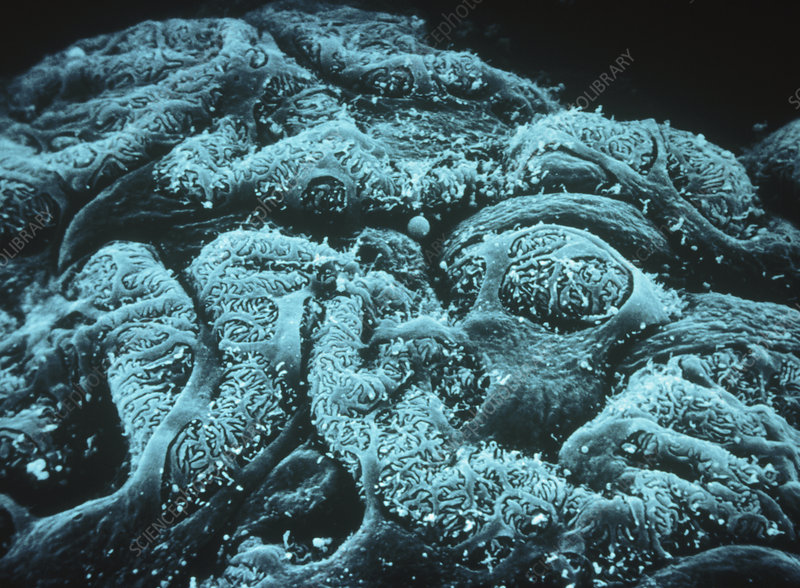 SEM of podocytes on the surface of a glomerulus