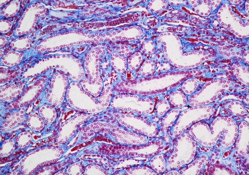 Kidney showing renal tubules