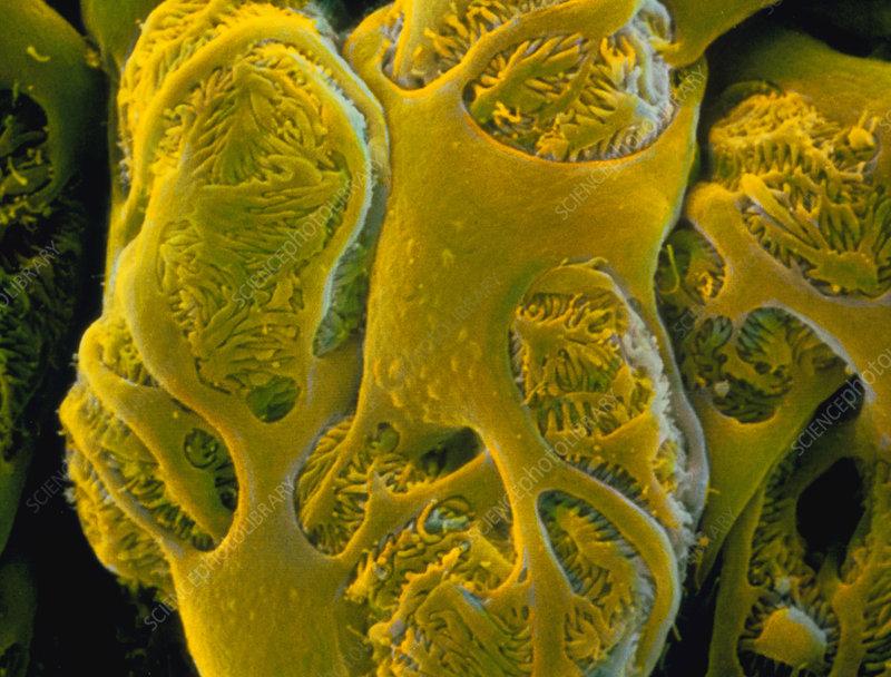 False-colour SEM of podocytes and filtration slits