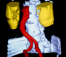 False-colour 3-D CT scan of kidneys & aorta