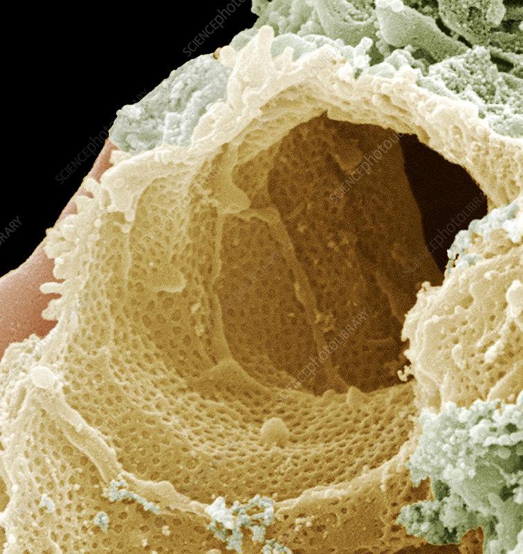 Kidney capillary, SEM