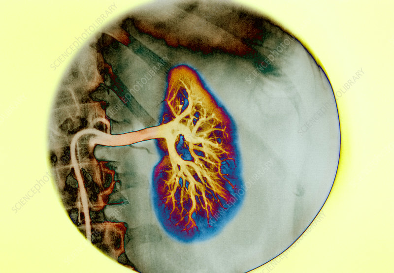 Renal blood vessels, X-ray