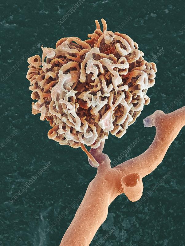 Kidney glomerulus, SEM