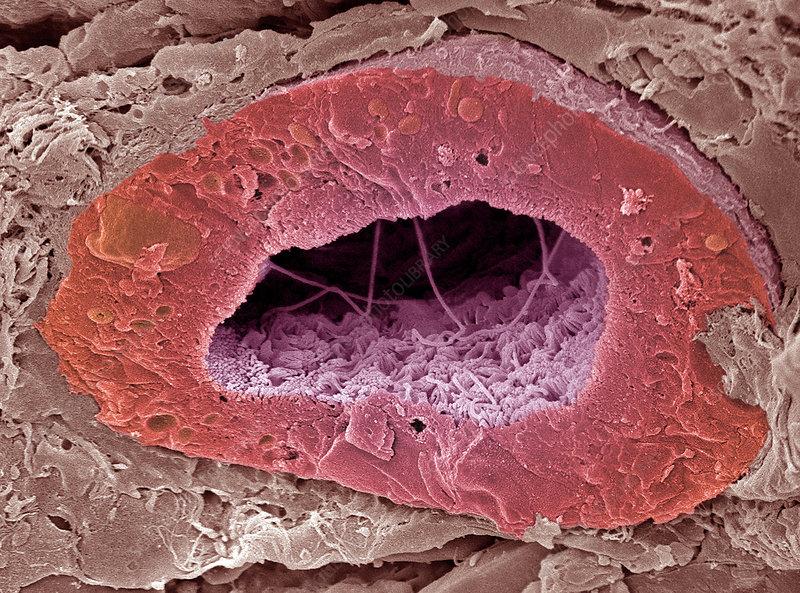 Kidney tubule, SEM