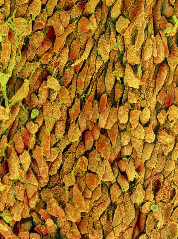 Coloured SEM of epithelial cells of human bladder