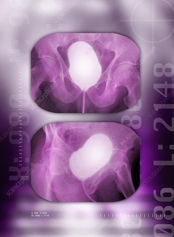 Healthy bladder, cystogram X-ray