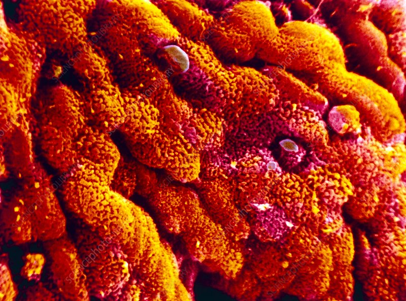 False-colour SEM of the wall of the human colon