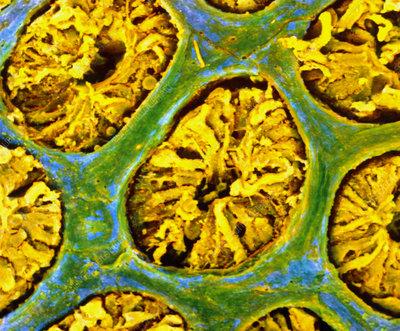 False-colour SEM of glandular wall of the colon